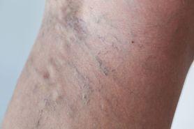 Czy zmiana na nodze mężczyzny to żylak? Ekspert stawia diagnozę (WIDEO)