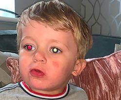 Matka zrobiła synkowi zdjęcie. To prawdopodobnie uratowało mu życie