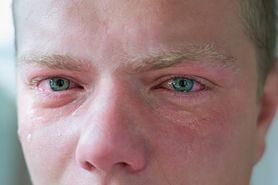 Podkrążone oczy – przyczyny, zagrożenia