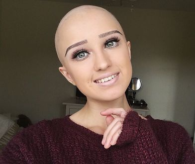 Lauren zaczęła łysieć jako nastolatka. Ukrywała to przed wszystkimi.