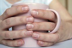 Białe plamy na paznokciach. Co oznaczają i jak się ich pozbyć?