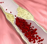 5 nietypowych objawów miażdżycy