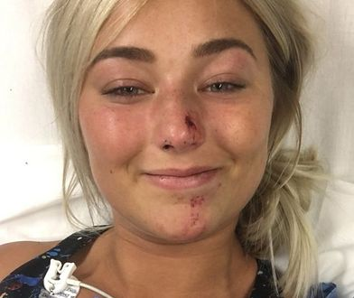 Chloe pochwaliła się makijażem tuż po wypadku.