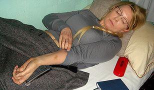Julia Tymoszenko prezentuje jeden z siniaków na ciele