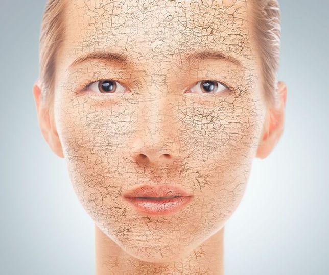 Suche skórki na twarzy i nosie - jak się ich pozbyć?