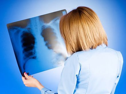 Rak płuc zabija coraz więcej kobiet