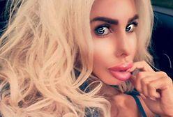 Fala operacji plastycznych polskiej Barbie trwa. Następna może zagrażać jej życiu