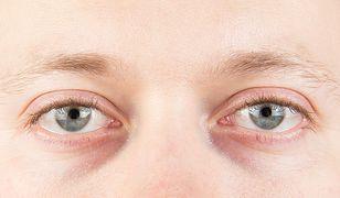 Nie używasz korektora pod oczy? Dowiedz się, dlaczego warto