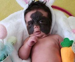 Okrzyknięto ją ''dzieckiem w masce Batmana''. Niewiarygodne, jak dziś wygląda