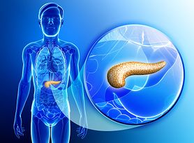 Jakie są pierwsze objawy raka trzustki? (WIDEO)