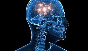 Udało się stworzyć implant mózgu. Poprawia pamięć i pomoże leczyć Alzheimera