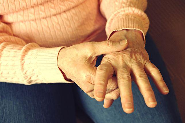 Nietypowy wygląd dłoni pozwolił zdiagnozować groźną chorobę
