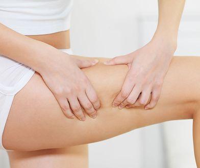 Bańka chińska na cellulit musi być stosowana systematycznie, a skóra się ujędrni i uelastyczni