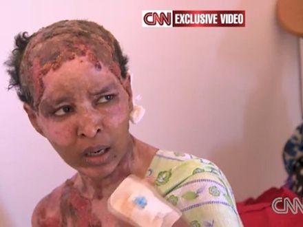 """""""Wylewano mi na głowę wrzątek"""" - relacja niani wnuków Kaddafiego"""