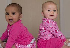 Szokujące! Na świat przyszły bliźniaczki o różnym kolorze skóry