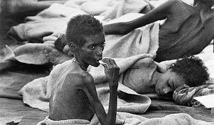 Ofiary głodu w Etiopii, fotografia z 1 listopada 1984 r.