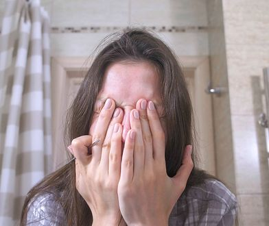 Problemy skórne są jednym z głównym powodów kompleksów u kobiet