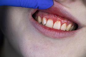 Odsłonięte szyjki zębowe – przyczyny, objawy, leczenie, nadwrażliwość zębów