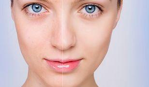 Jak dbać o skórę z przebarwieniami?