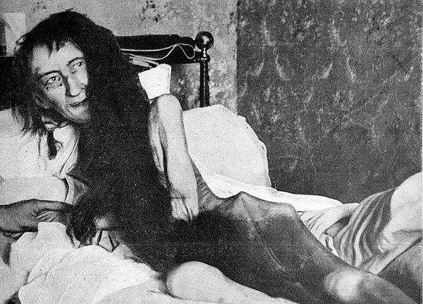 Blanche Monnier po odnalezieniu w pokoju