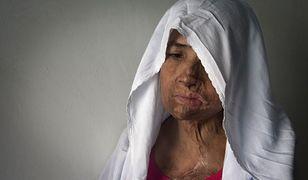 Podczas kłótni mąż oblał Niaz Bano kwasem.