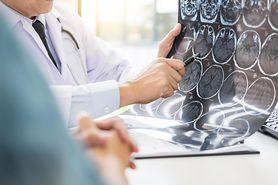 Neurochirurg - wskazania do wizyty, zlecane badania, metody leczenia