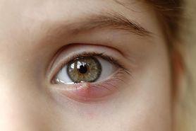 Jęczmień - rodzaje, przyczyny, objawy, domowe sposoby, leczenie