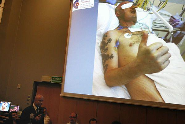 Kierownik zespołu operującego prof. Adam Maciejewski podczas konferencji prasowej nt. pierwszego przeprowadzonego w Polsce przeszczepu twarzy
