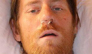 Policja już wie, kim jest człowiek znaleziony w Tatrach