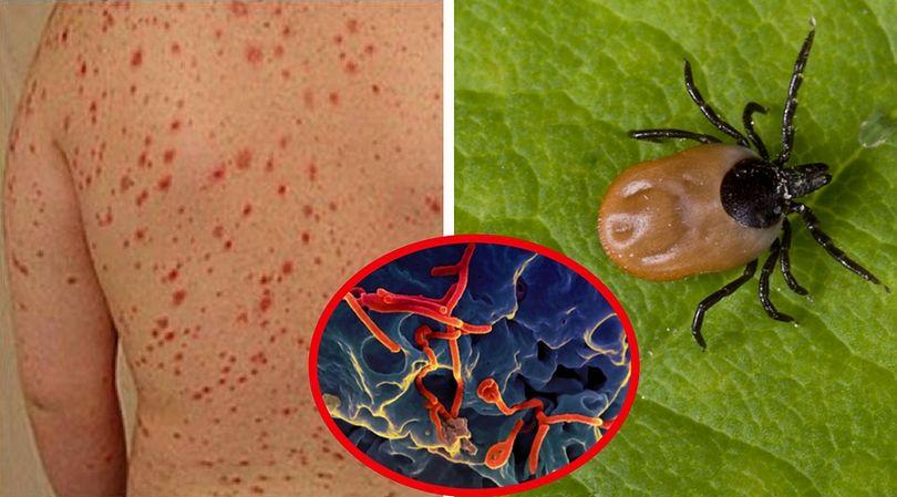 Ostra wysypka jako objaw wirusa Bourbon oraz widok rozwijającego się wirusa, przenoszonego przez kleszcza