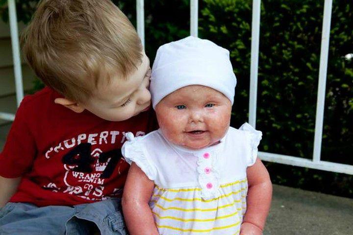 Brenna i jej brat Connor