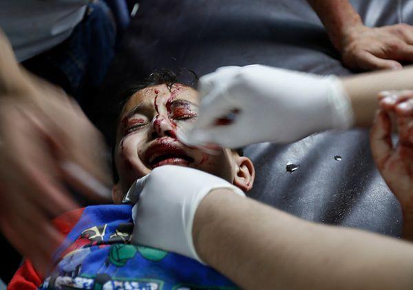 Dramatyczna sytuacja w Strefie Gazy