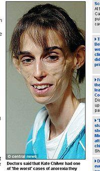 31-latka zmarła na anoreksję – ważyła zaledwie 29kg!