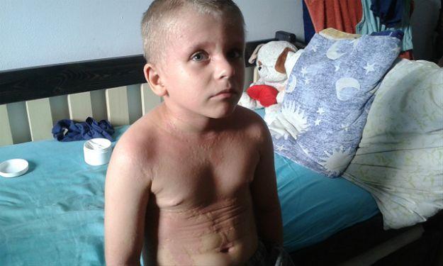 Życie 8-letniego Micka Hajdena to prawdziwy dramat. Każdy z nas może mu pomóc