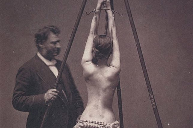 Leczenie schorzeń kręgosłupa w latach 70 XIX w. Polscy psychiatrzy pisali o podobnej metodzie leczenia nimformanek