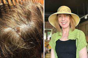 Fryzjerka uratowała klientce życie. Zauważyła niepokojącą zmianę na głowie