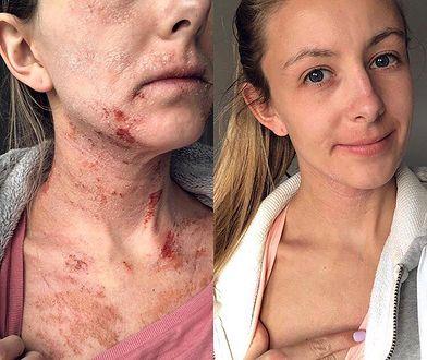 Laurie 2 miesiące temu ograniczyła kąpiele do minimum