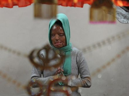 Co roku ponad tysiąc indyjskich kobiet staje się ofiarami ataku kwasem