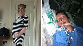 38-latka po orgazmie doznała udaru i paraliżu
