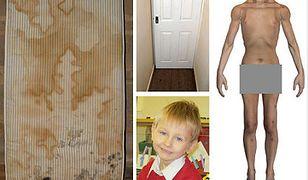 Dramatyczne warunki, w jakich żył 4-letni Daniel P.