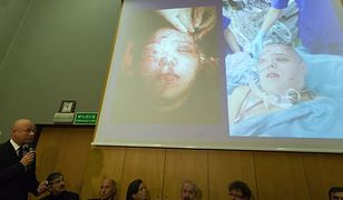 Drugi całkowity przeszczep twarzy w Polsce