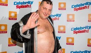 Adam Kraśko o operacji zmniejszenia żołądka