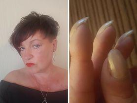 Nietypowy objaw raka płuc na paznokciach. Myślała, że to cecha rodzinna