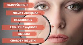5 niedoborów witamin wypisanych na twarzy
