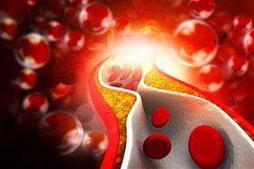 6 nietypowych objawów wysokiego cholesterolu