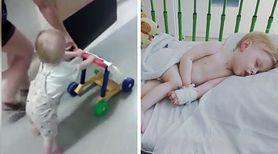 Postawił swoje pierwsze kroki na chwilę przed amputacją nogi