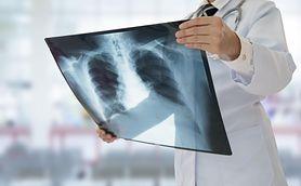 RTG klatki piersiowej - wskazania, przebieg badania