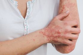 Zespół Lyella – przyczyny, objawy i leczenie