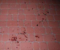 Po wypadku 6-latek uciekł. Policjanta naprowadziły ślady krwi