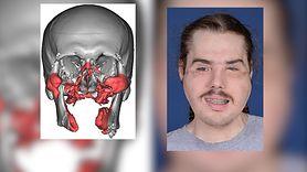 Chciał popełnić samobójstwo. Potrzebował przeszczepu twarzy (WIDEO)
